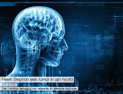 Creatieve-marketing-concepten-webdevelopment---hersenen